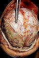 Pneumococcal meningitis in an alcoholic patient.