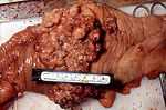 Gross pathology of a surgical specimen revealing e