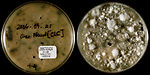 This image depicted two sides of a Petri dish, whi