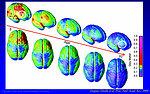 Brain Scan-Healthy