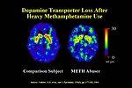 Dopamine Transporter