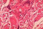 Histopathology of Plasmodium falciparum malaria, p