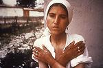 This patient was exhibiting dermatitis of her hand