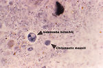 This iron-hematoxylin-stained photomicrograph reve
