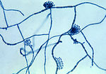 This micrograph of the fungus Hortaea werneckii, t