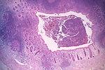 Histopathology of Taenia saginata in appendix.  Pa