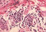 Histopathology of delayed hypersensitivity reactio
