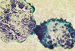 Histopathology of botryomycosis, foot.  Methenamin