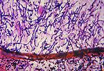 This photomicrograph reveals histopathologic chang