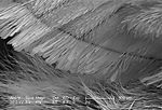This scanning electron micrograph (SEM) depicted a