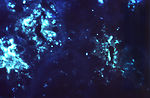Using a direct fluorescent antibody (DFA) stain, t