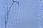 Magnified 1000X, this photomicrograph revealed som