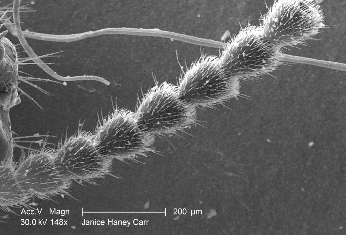 Under a relatively low magnification of 148X, this scanning electron micrograph (SEM) revealed some of the ultrastructural morphology found