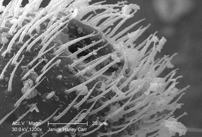 Under a moderately-high magnification of 1200X, this scanning electron micrograph (SEM) revealed some of the ultrastructural morphology foun