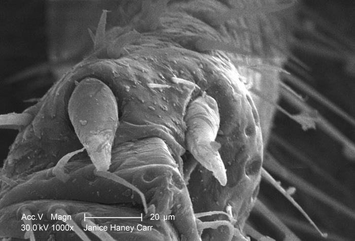 Under a moderately-high magnification of 1000X, this scanning electron micrograph (SEM) revealed some of the ultrastructural morphology foun