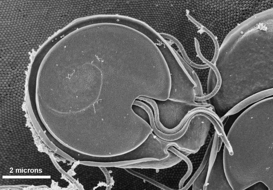 This scanning electron micrograph (SEM) revealed the ventral surface of a Giardia muris trophozoite that had settled atop the mucosal surfac