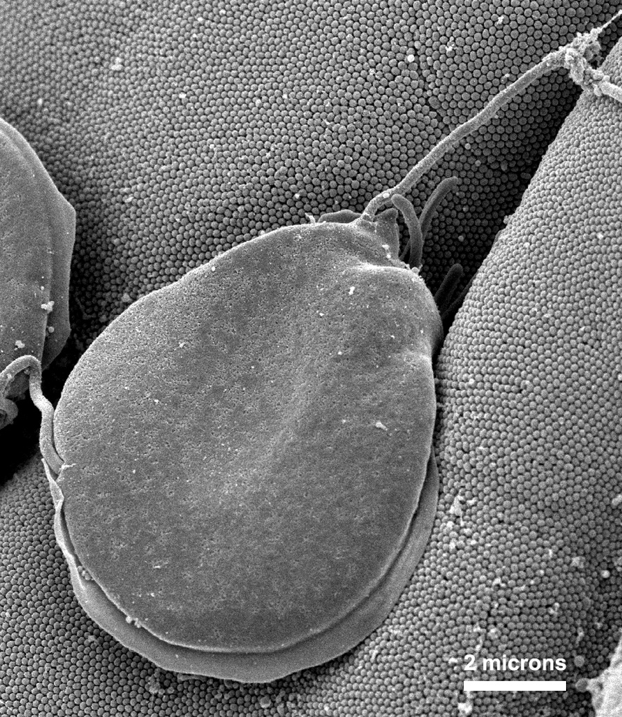 This scanning electron micrograph (SEM) depicted a Giardia muris protozoan settled atop intestinal mucosal villi, adhering itself to the mic