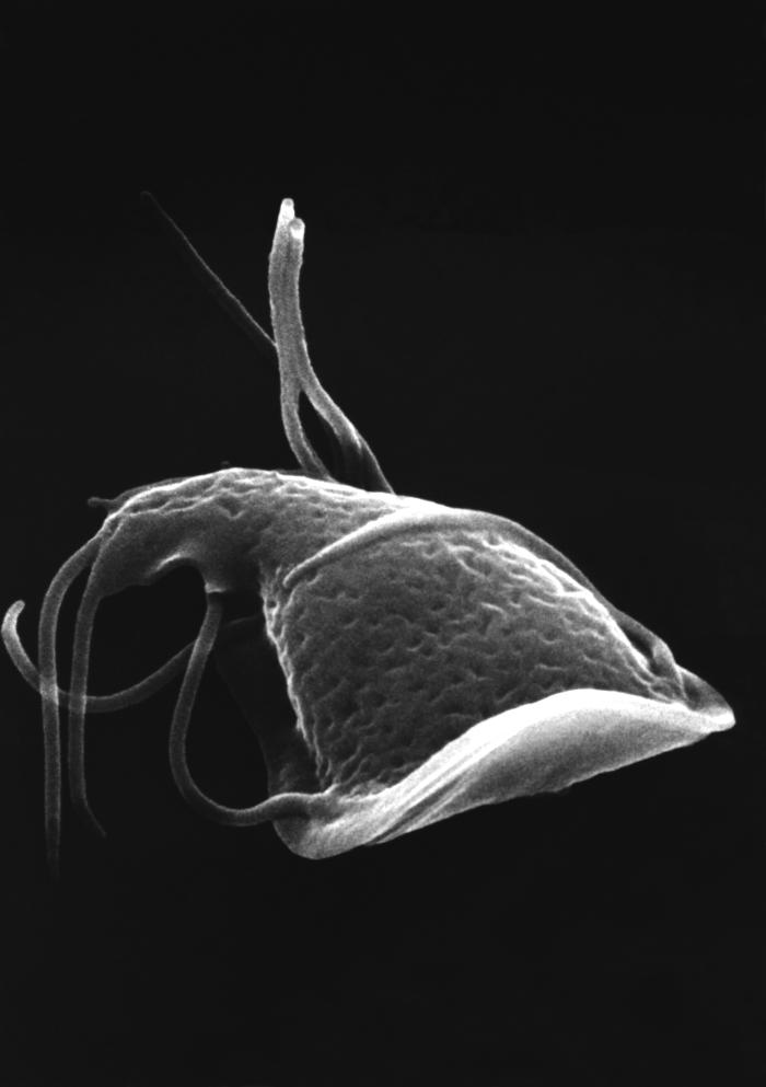 This scanning electron micrograph (SEM) depicted the dorsal (upper) surface of the intestinal protozoan, Giardia. Some of the identifying mo