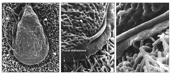 These three scanning electron micrographs (SEM) revealed under successively greater magnifications, some of the ultrastructural morphologic