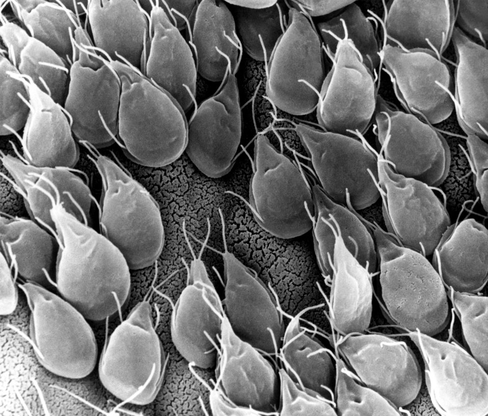 This scanning electron micrograph(SEM) depicted the mucosal surface of the small intestine of a gerbil infested with Giardia sp. protozoa.