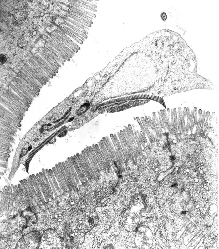 This is a transmission electron micrograph (TEM) of a thin section cut through the ventral adhesive disk (suction-cup-like structure) of a G