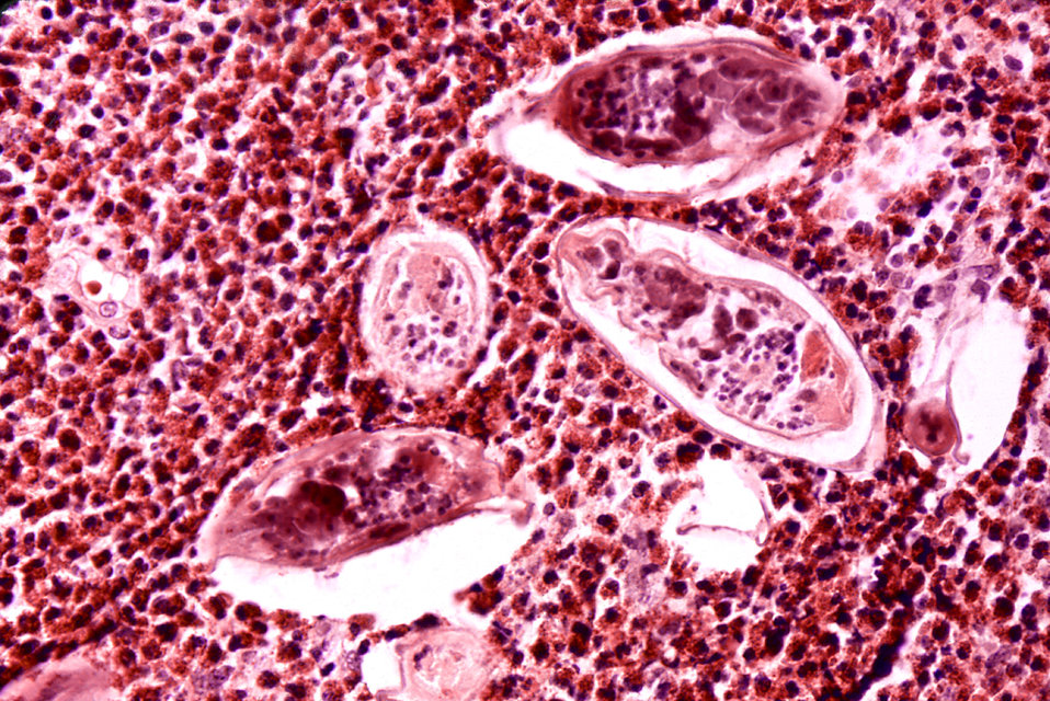 Histopathology of schistosomiasis haematobia, bladder