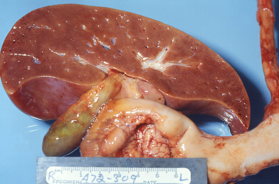 Gross pathology of liver in fatal Reye's syndrome
