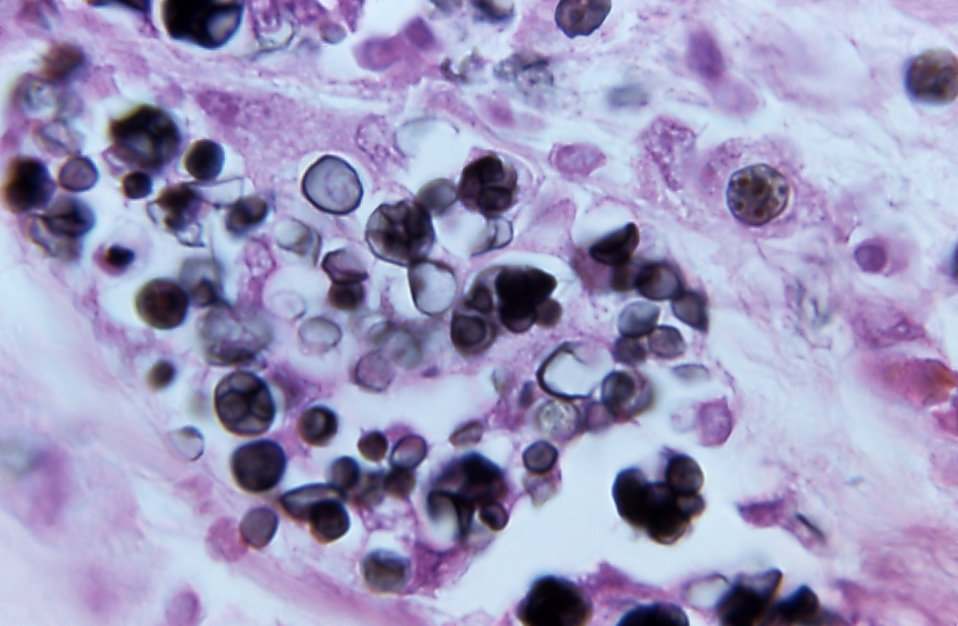 Using a Gomori staining technique, this photomicrograph magnified 1400X, depicted the mucocutaneous disease, 'protothecosis'. The specimen c