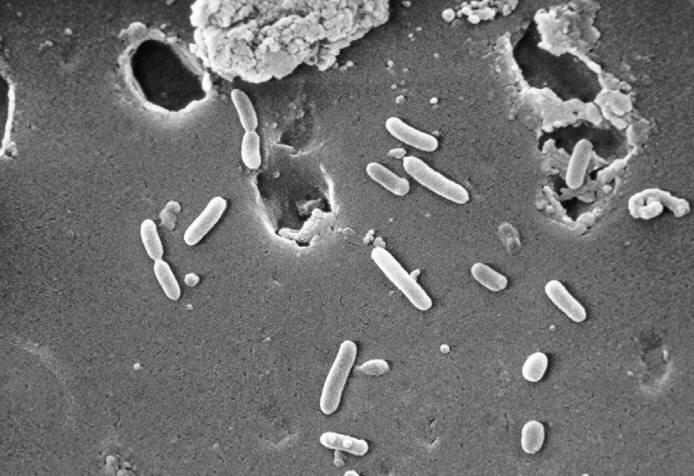 Scanning electron micrograph (SEM) of Pseudomonas aeruginosa bacteria.