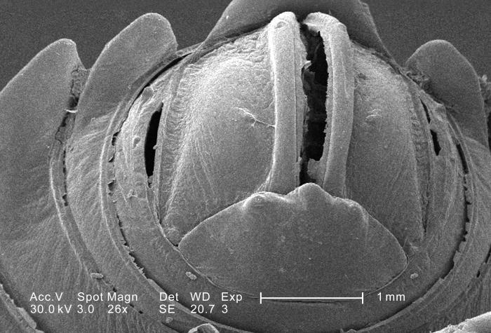 This scanning electron micrograph (SEM) depicted a magnified inferior-oblique view of the caudal segment and its anal orifice, of an unident