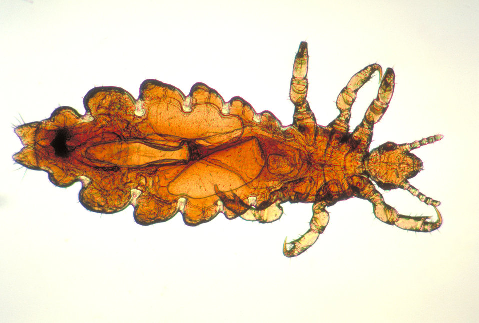 This image depicts a dorsal view of a female head louse, Pediculus humanus var. capitis.