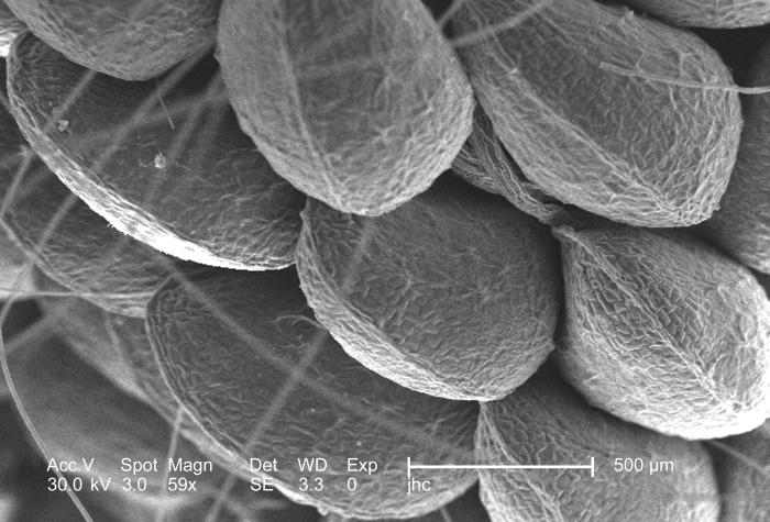 Under a low magnification of only 59x, this scanning electron micrograph (SEM) depicted the clustered exterior appearance of commonly growin