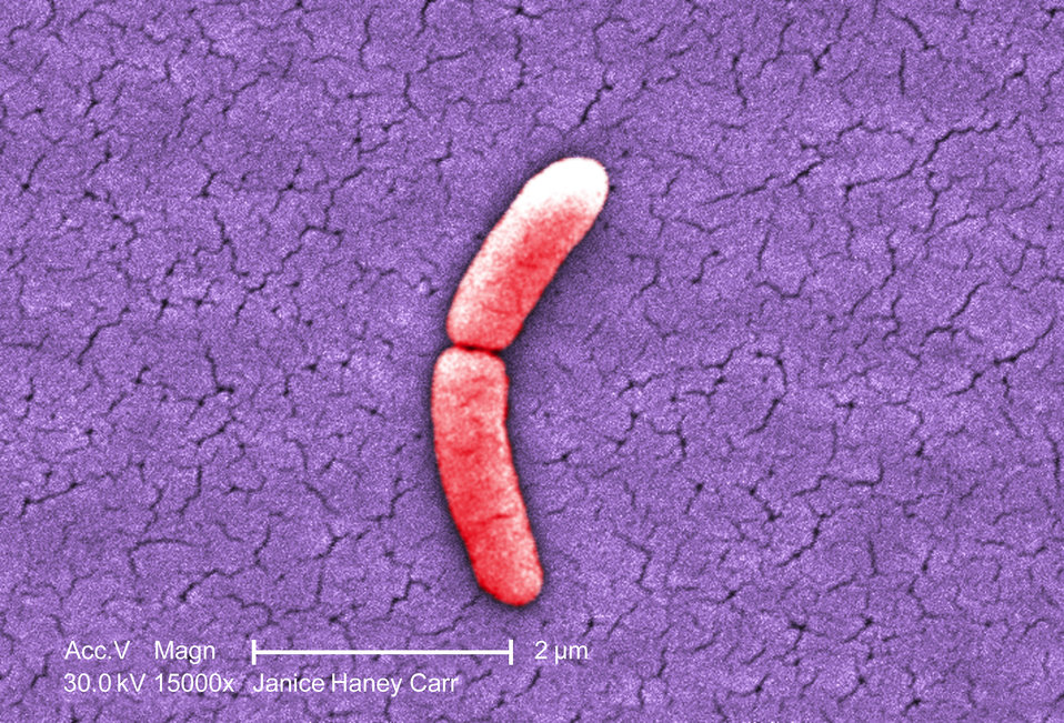 Under a very high magnification of 15000X, this colorized scanning electron micrograph (SEM) revealed the presence of a single Gram-negative