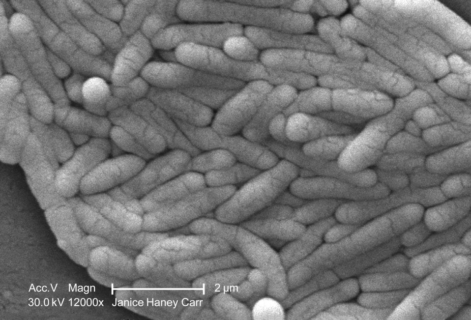 Under a very high magnification of 12000X, this scanning electron micrograph (SEM) revealed the presence of a large grouping of Gram-negativ