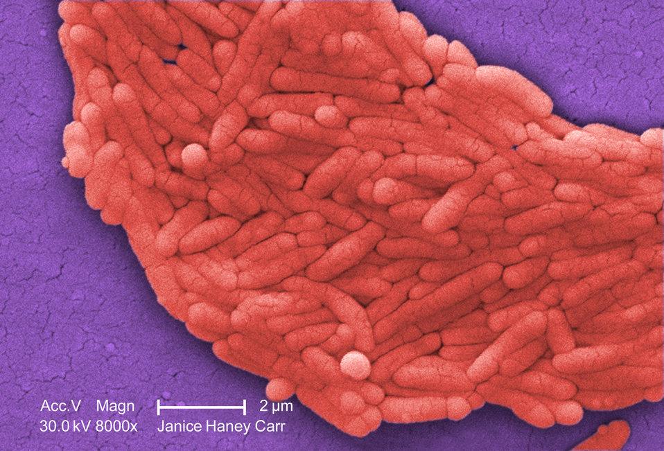 Under a moderately-high magnification of 8000X, this colorized scanning electron micrograph (SEM) revealed the presence of a large grouping