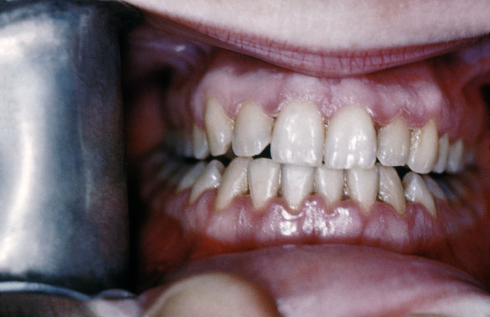 This 1950s photograph depicted an example of acute necrotizing ulcerative gingivitis, also known as 'trench mouth.' The symptoms of this bac