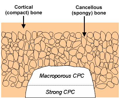 Layered Approach May Yield Stronger, More Successful Bone Implants
