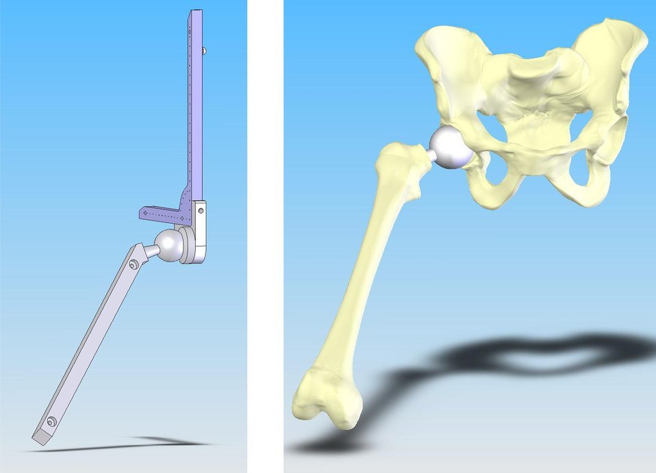 NIST Measuring Device Aims to Up Hip Operation Success
