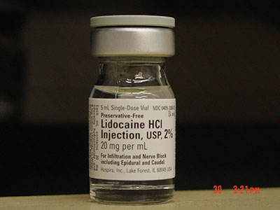 Recalled -  Lidocaine HCl