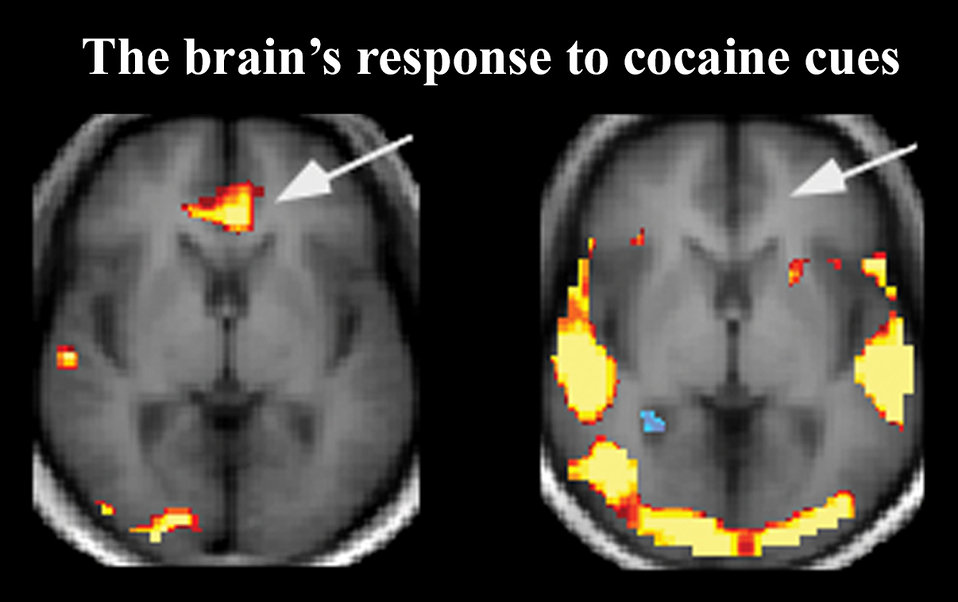 The brain's response to cocaine cues