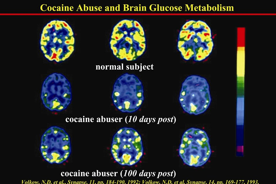 Cocaine Abuse and Brain Glucose Metabolism