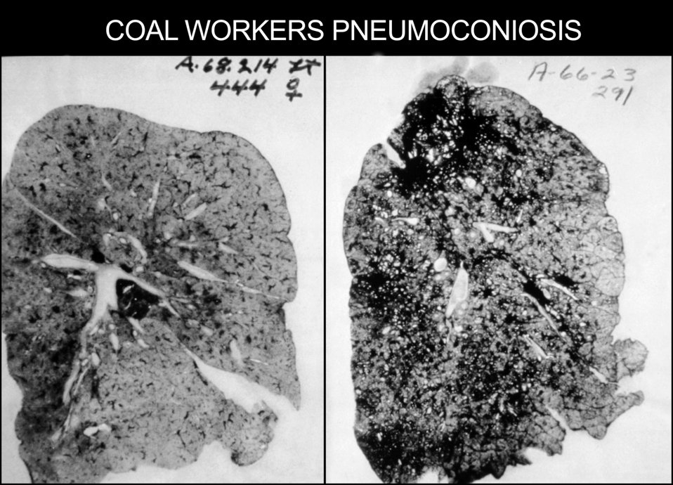 This occupational health image shows the lungs of a coal worker with Pneumoconiosis, or Black Lung Disease.