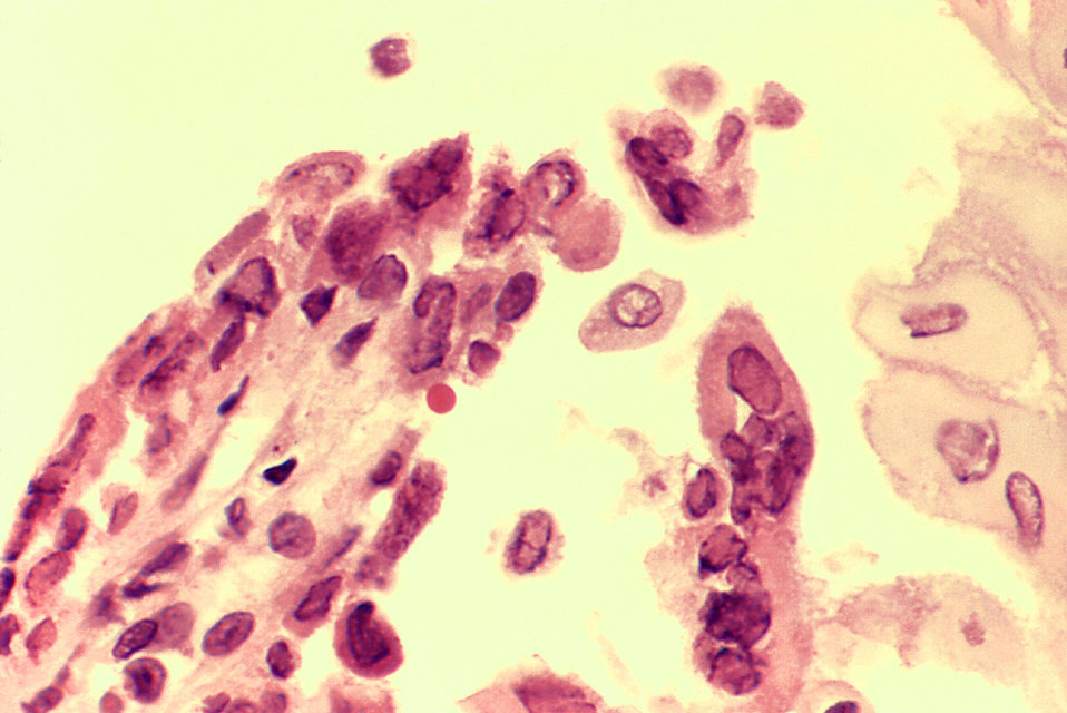 Ulcer due to active Herpes simplex virus infection in AIDS, esophagus.