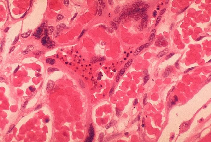 Histopathology of Plasmodium falciparum malaria, placenta.