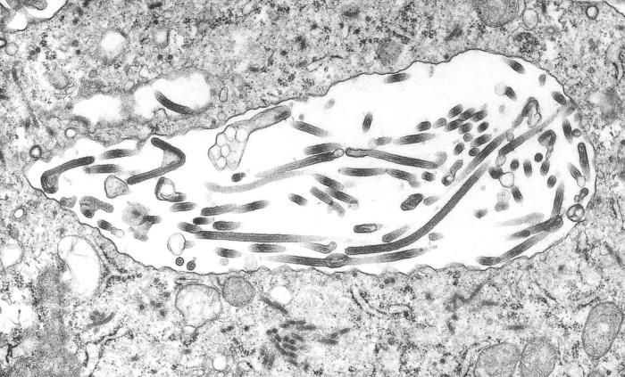 This 1995 transmission electron micrograph (TEM) revealed some of the ultrastructural morphologic changes in this tissue sample isolate brou