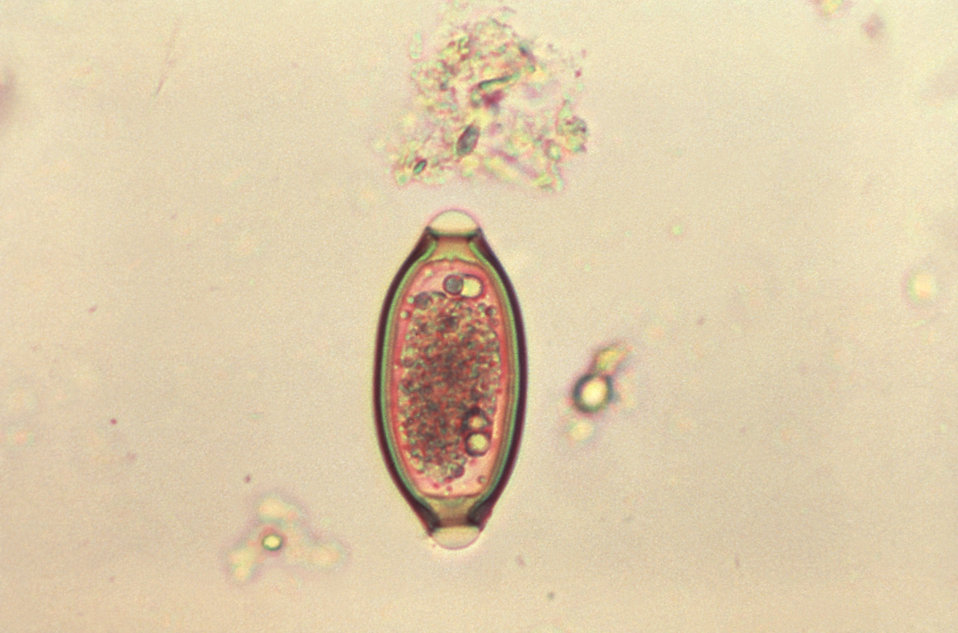 This micrograph depicts an egg from the 'human whipworm', Trichuris trichiura, the causal agent of 'Trichuriasis'.
