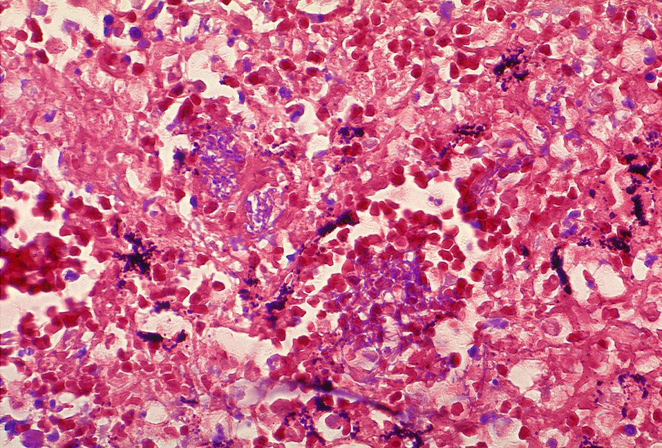 Histopathology of mediastinal lymph node in fatal human anthrax.