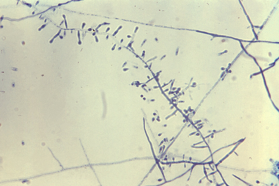 Magnified 475X, this photomicrograph depicts some of the structural morphology of the fungus, Trichophyton tonsurans.  A dermatophyte, these