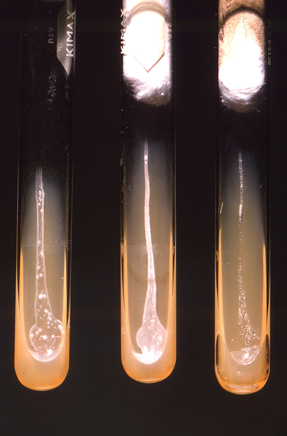 From left to right, these three test tubes represent three different growing environments within which Actinomyces viscosus bacteria were gr