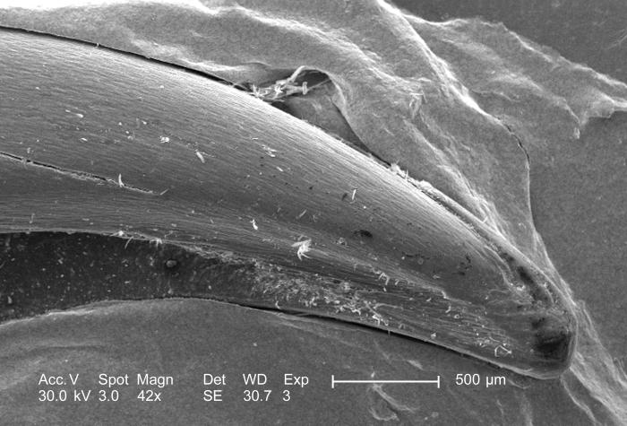 Using a low magnification, this 2005 scanning electron micrograph (SEM) depicts the morphological characteristics seen at the distal end of